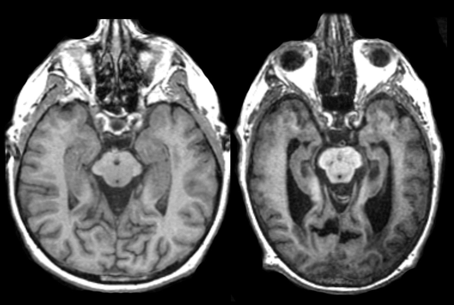 Avanzando en Investigación contra el Alzheimer