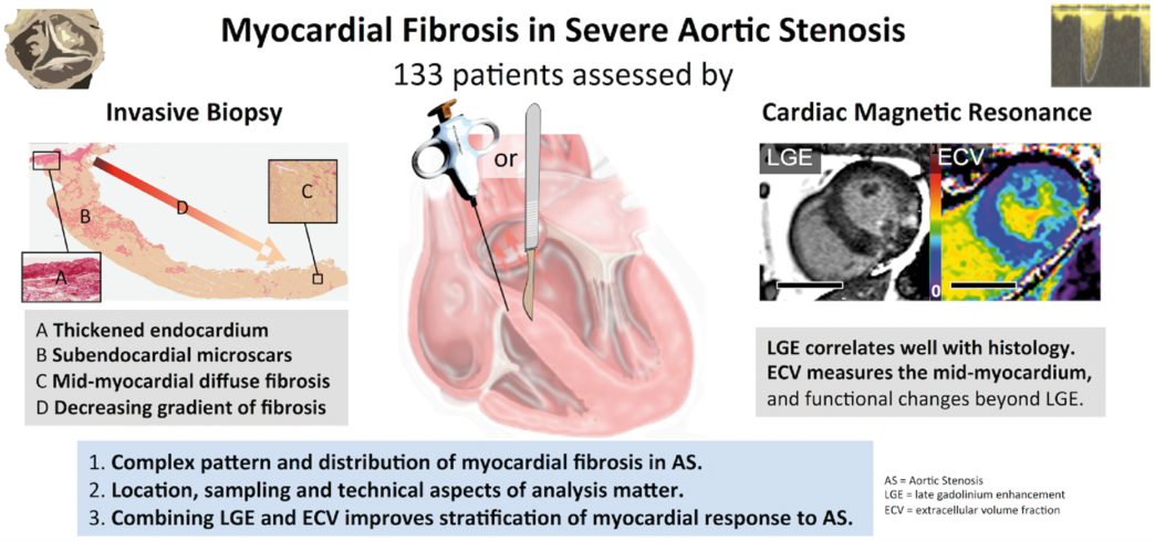 Myocardial fibrosis in severe aortic stenosis