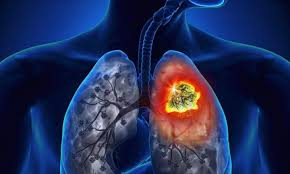 Un grupo de proteínas ayuda a predecir el riesgo de recaída de pacientes con cáncer del pulmón